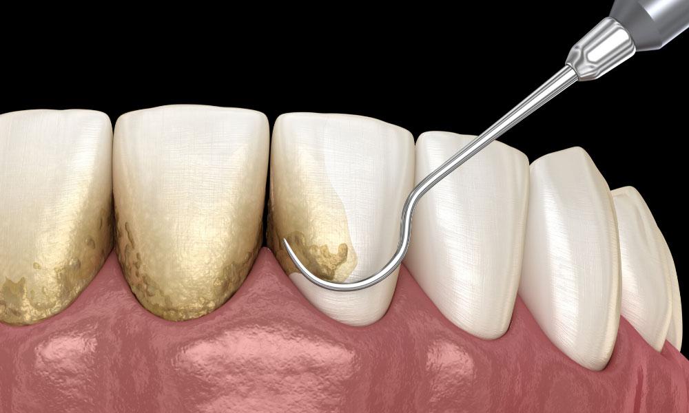 periodoncia palma de mallorca