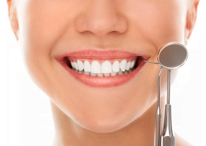 Blanqueamiento dental Palma